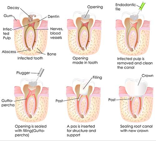 West Des Moines Root Canal Therapy