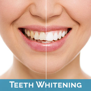 Teeth Whitening in West Des Moines