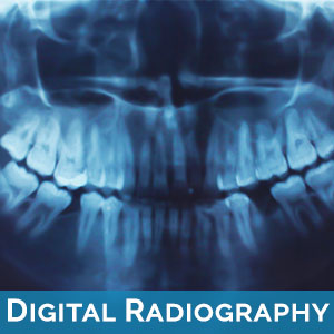 Digital Radiography in West Des Moines