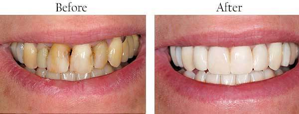 Before and After Teeth Whitening in West Des Moines