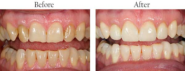 Before and After Invisalign in West Des Moines