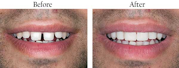 Before and After Dental Implants in West Des Moines