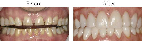 Before and After Veneers in West Des Moines