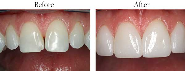 Before and After Dental Crowns in West Des Moines